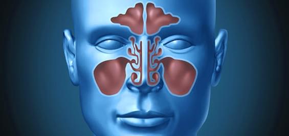 Гайморит: первые симптомы и варианты лечения